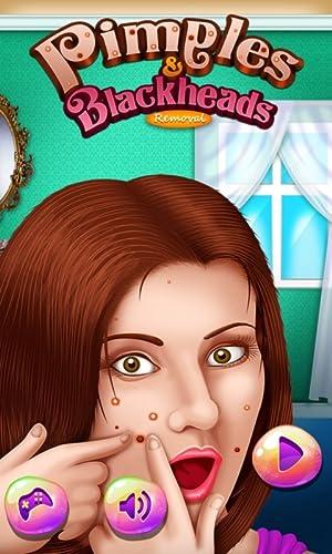 Espinillas y puntos negros : Deshacerse de los granos de la nariz...