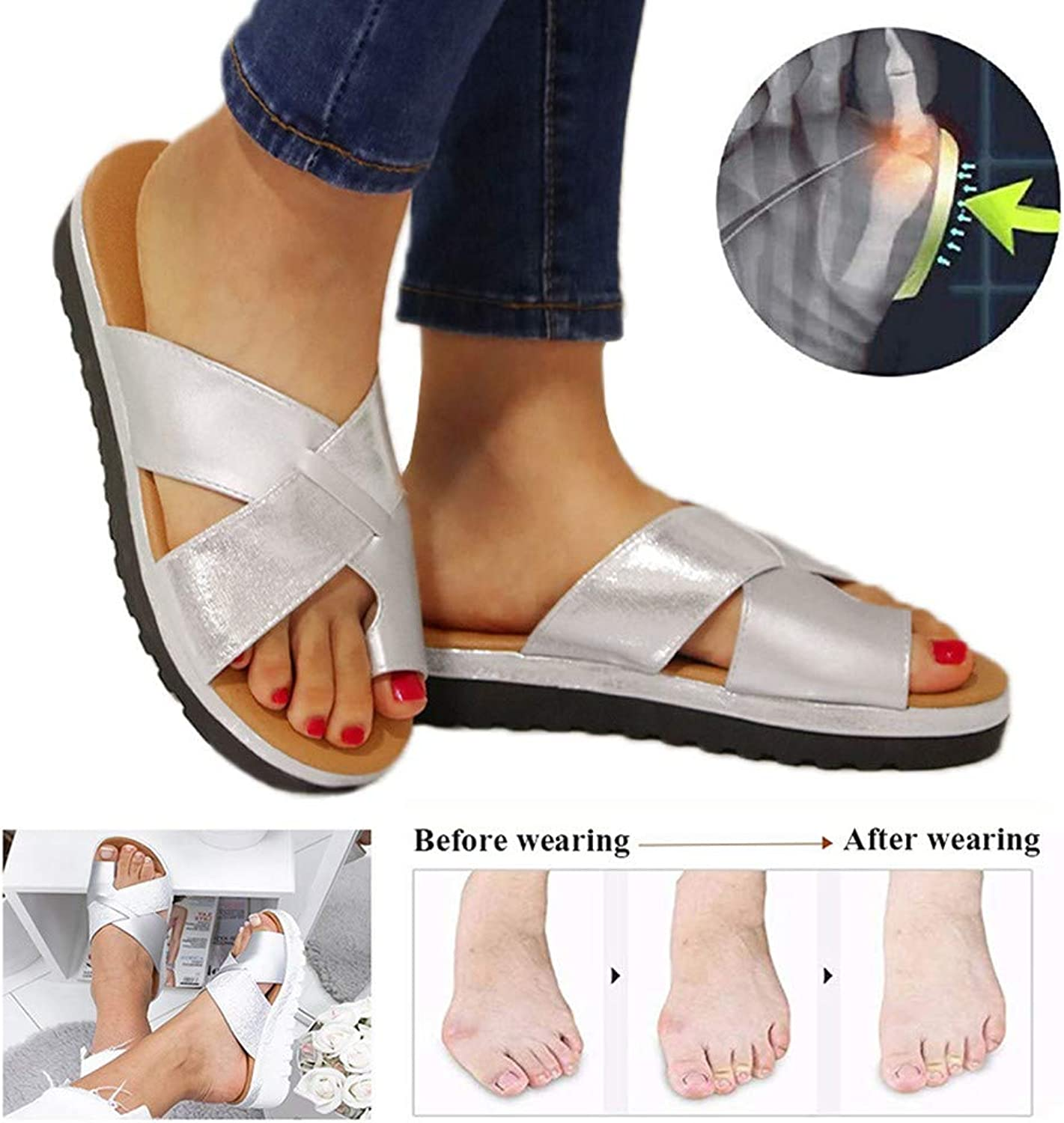 Foot Correction Sandals Summer Women shoes Flat Sole PU Leather Slippers Non Slip Wear Resistant Comfortable Slippers for Orthopedic Big Toe Bone Correction Beach Travel,Silver,36