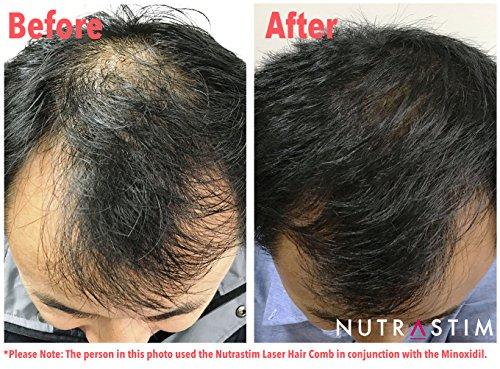 NutriStim Laser Comb Before and After