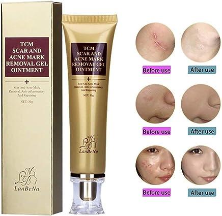 Ochioly Acne Scar Removal Cream a1a483566ead5