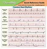 EKG Pocket Card