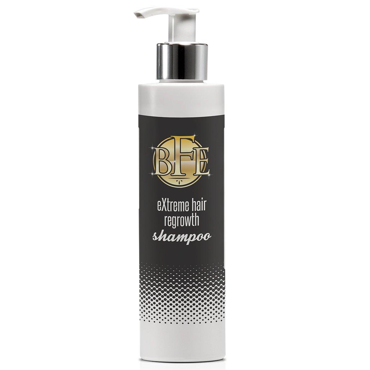 Hair Regrowth Limited time cheap sale Charlotte Mall Shampoo-Maximum Strength DHT St Repairs Blocker.