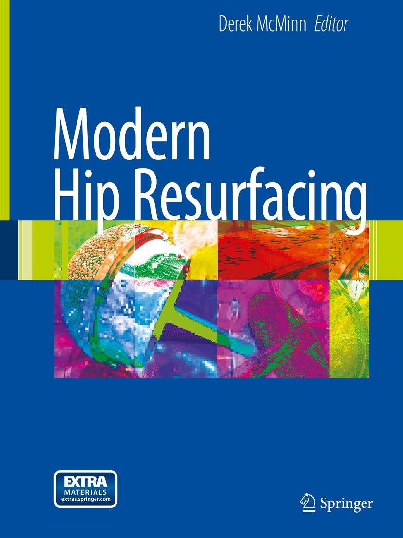 Modern Hip Resurfacing (English Edition)
