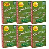 Grass Lawn Seed, Ultra Patch 1.4kg Hard Wearing, Fast Growing, Pet Urine Neutraliser, Defra Approved, Grass Seed Patch Repair