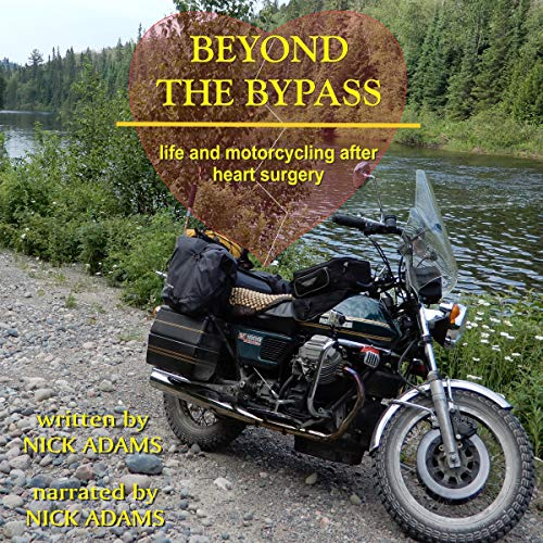 Page de couverture de Beyond the Bypass