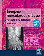 Imagerie musculosquelettique - Pathologies générales d'Anne Cotten