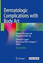 Dermatologic Complications with Body Art: Tattoos, Piercings and Permanent Make-Up (English Edition)