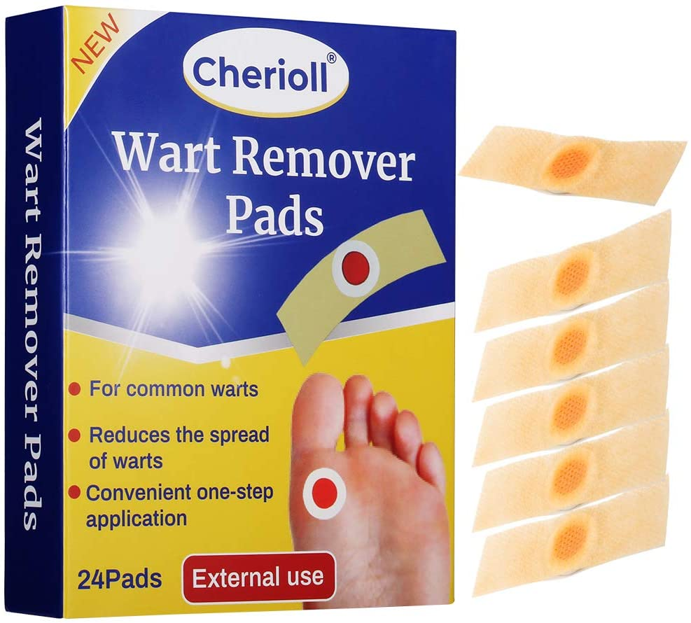 Wart in foot removal