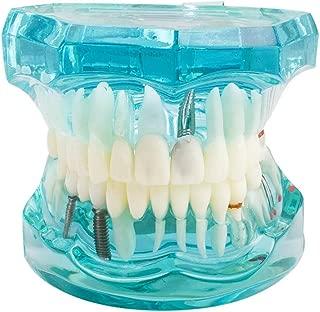 dental model work