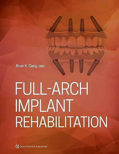 Books By Arun Garg_full Arch Implant Rehabilitation_0867158093_fr ...