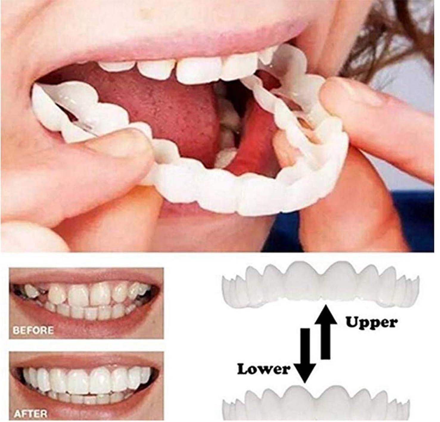 猟犬パリティリスナー12組の化粧歯と美容歯-完璧な笑顔の歯-白い歯を美しく、完璧な笑顔にする