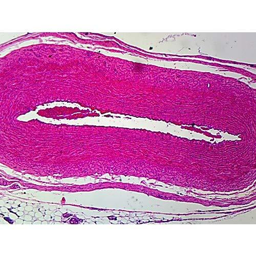 GSC S06223, Omentum Circulatory System Capillary Prepared Microscope Slide, Pack of 10