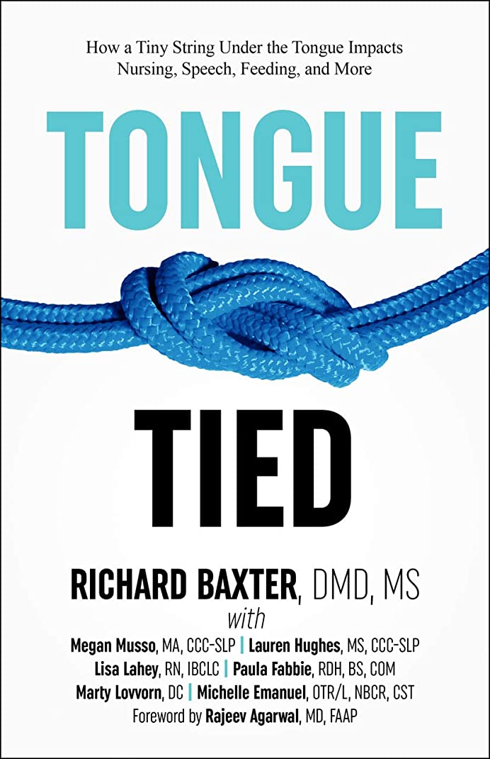 劇作家ドームランダムTongue-Tied: How a Tiny String Under the Tongue Impacts Nursing, Speech, Feeding, and More (English Edition)