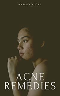 Acne Remedies: Easily make effective beauty remedies for acne and oily skin care