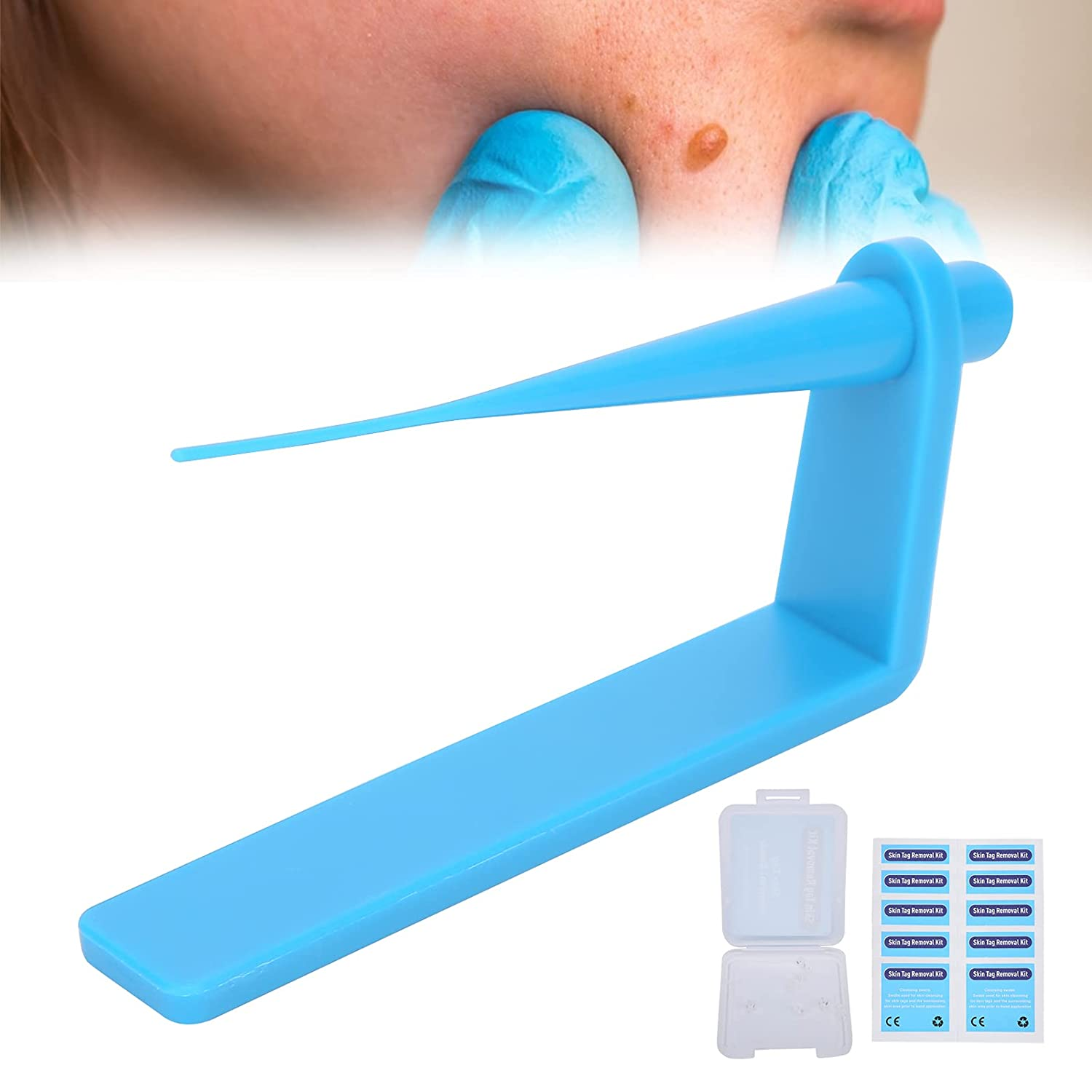 Sales of SALE items from new works Skin Tag Remover Kit Micro Small Sk For Discount is also underway Device