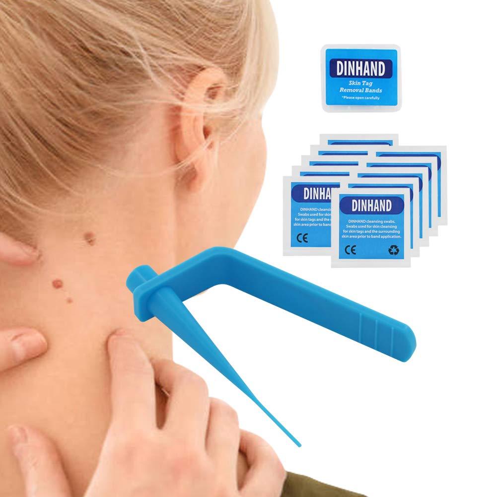 Premium Skin Tag Remover Device Skin Tag Removal Kit Remove