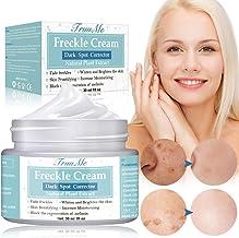Freckle Cream, Dark Spot Corrector, Melasma Cream, Natural Gentle Skin Brightening &..