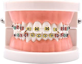Angzhili Dental Orthodontic Demonstration Model Treatment Model with Metal Bracket,Arch Wire Explaining Model with Braces