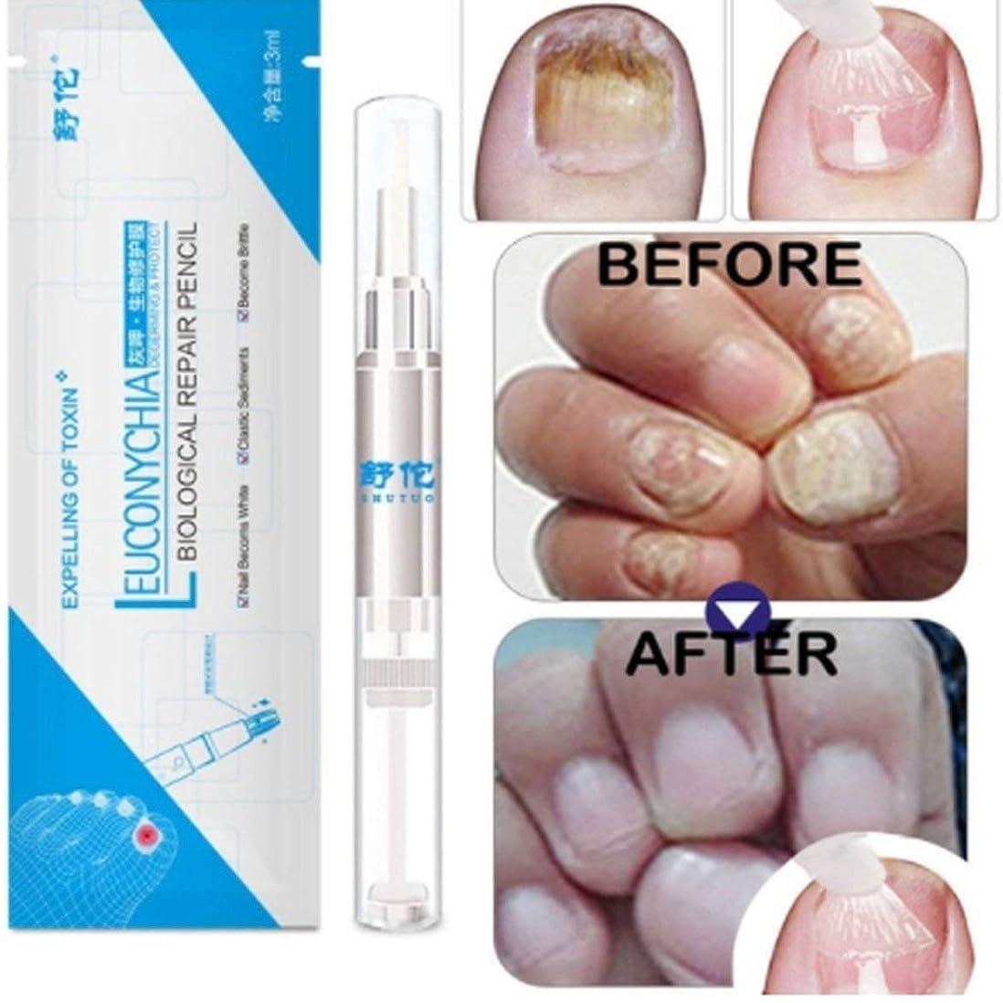 資本シンボル切手Kongqiabona 3ML真菌爪治療ペン爪真菌症爪垢抗真菌爪の感染中国のハーブトウネイル真菌の治療