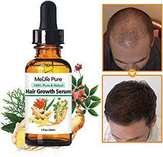 Hair Growth Serum,2019 Hair Growth Treatment,Hair Serum,Anti Hair Loss, Thinning, Balding, Repairs Hair Follicles, Promotes Thicker, Stronger Hair , And Promotes Hair Regrowth