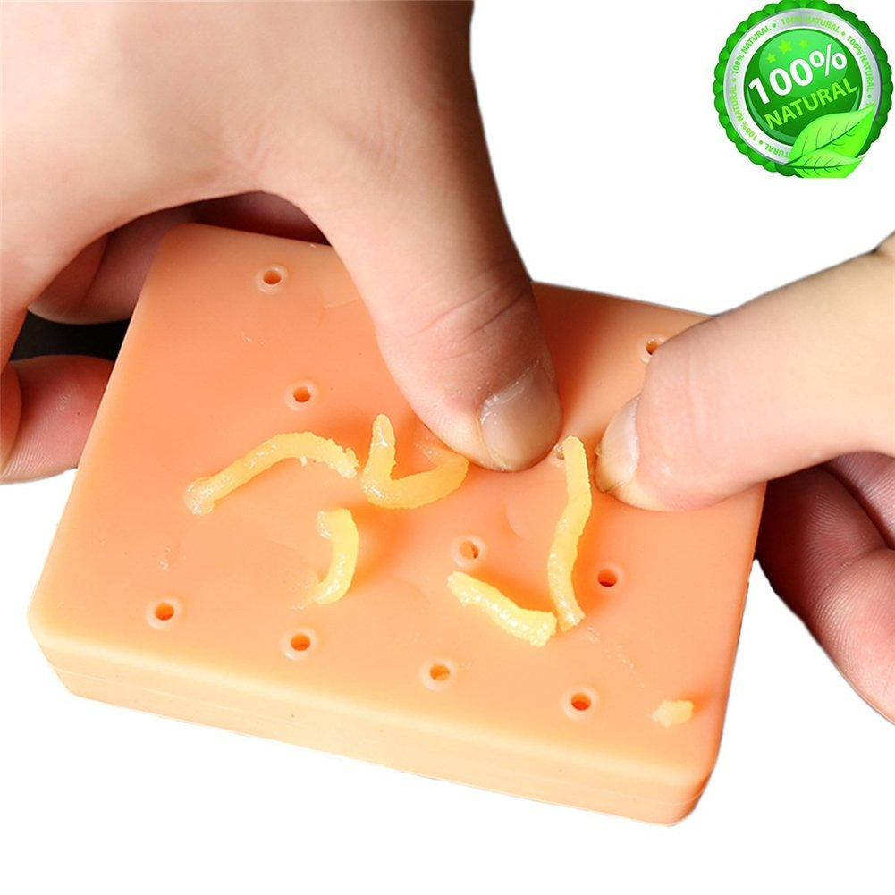 Pimple Popping Toy