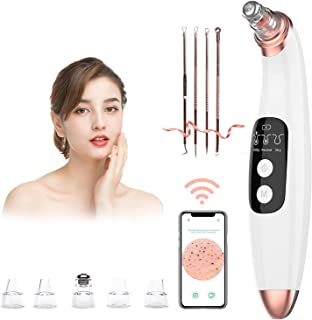 Blackhead Remover Vacuum Pore Cleaner with Camera -AMZGIRL Beauty Device with 3..