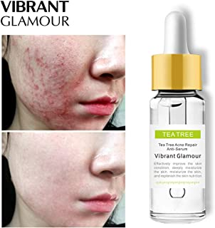 MeterMall VIBRANT GLAMOUR Tea Tree Acne Repair Face Serum Scar Acne Treatment Oil Control Essence