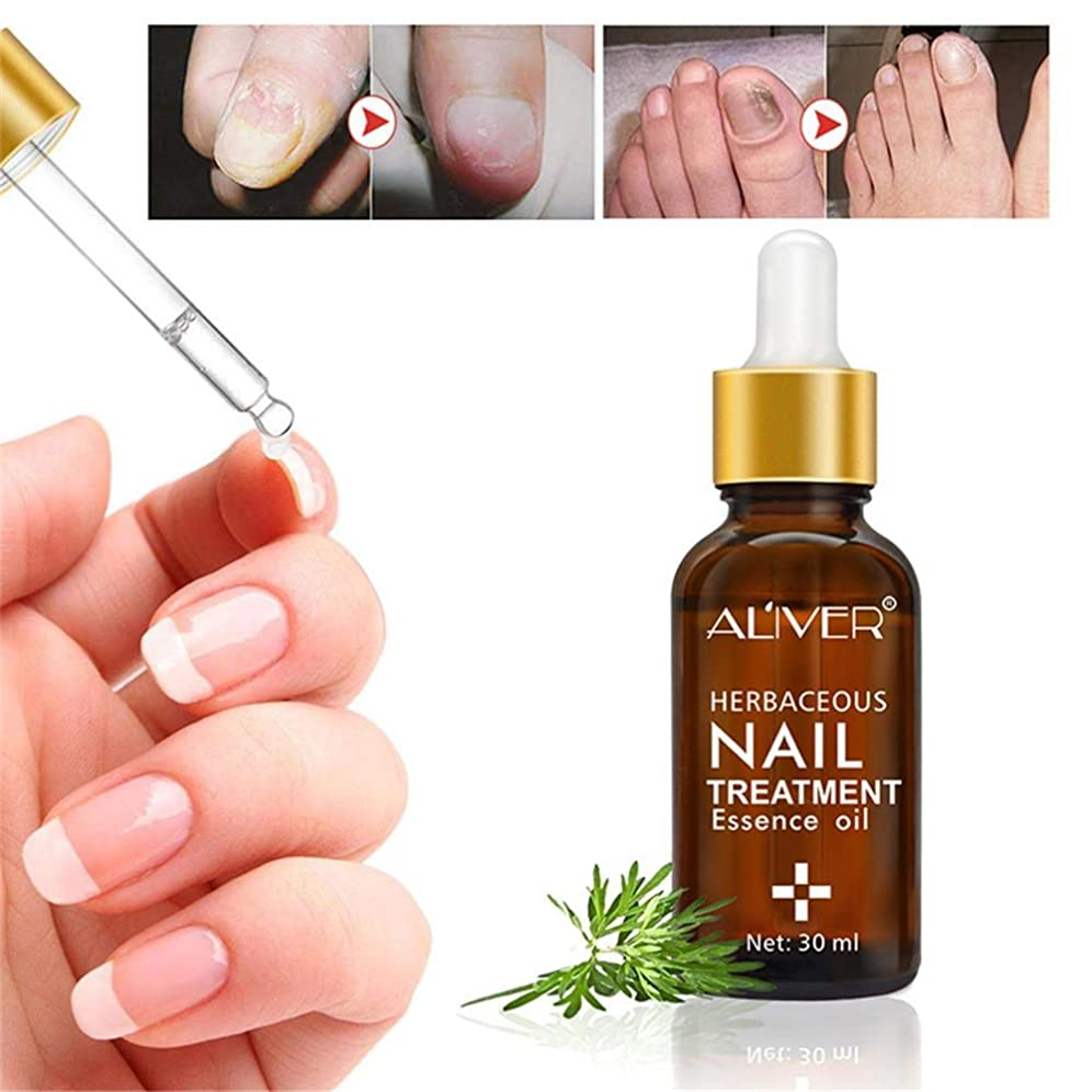 ステップ敵対的些細爪の修復, 足爪用補修液, 抗真菌 , 爪用除菌ケア ,灰指甲, 爪真菌症, ネイル抗真菌治療, 天然成分,安全,健康,副作用がない,肌を傷つけません,使いが簡単