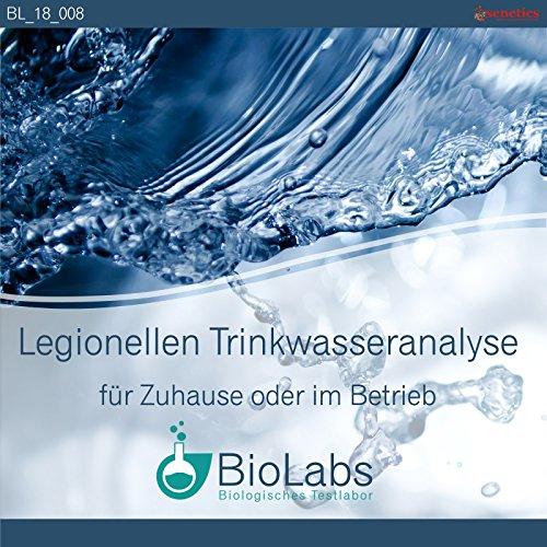 Hygiene-Wasser-Test: Testung Ihrer Proben auf Legionellen gemäß Trinkwasserverordnung (TwV)