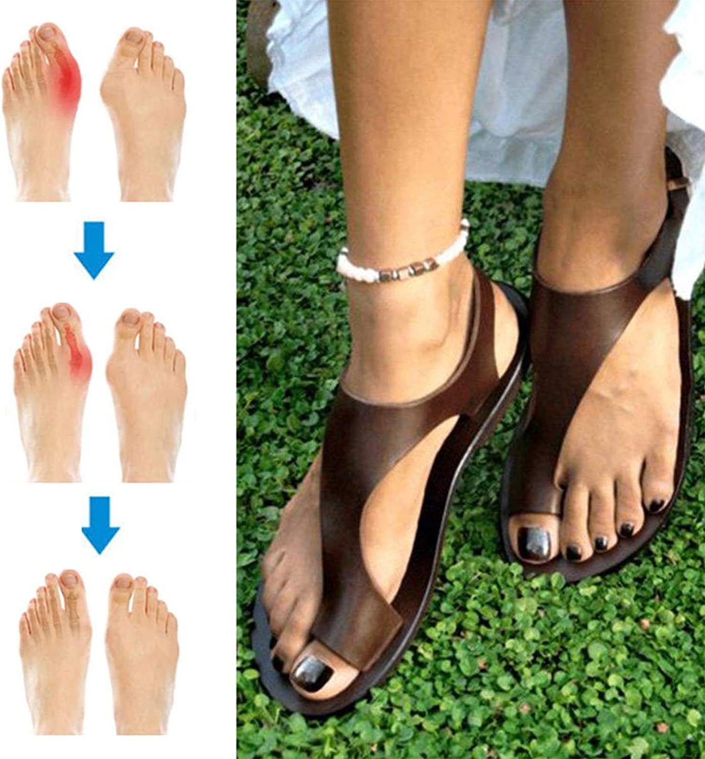Summer Woman Orthotic Sandals Beach shoes Slippers PU Leather Foot Casual Comfy Breathable Flat Heel,Best for Ladies Suffering from Bunions