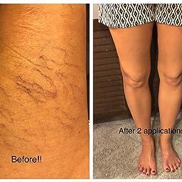 mumia de la venicose vene reviews cum se efectuează operația varicoasă pe picioare