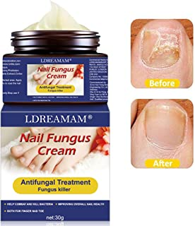 Sponsored Ad - Fungus Treatment Cream,Nail Fungus Cream,Foot Fungus,Fungus Stop,Anti fungal Nail,Restores The Healthy Appe...
