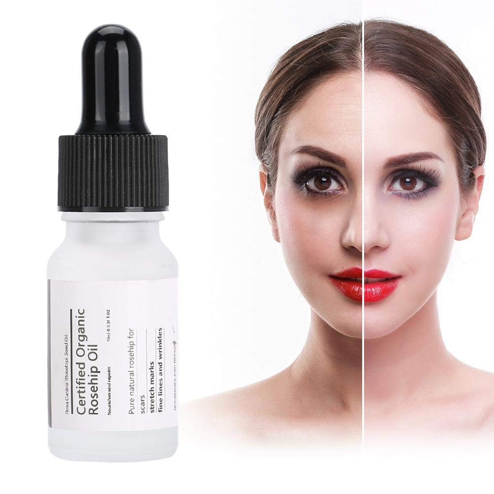 Face Serum 10Ml Natural Plant Facial Rosehip Oil Extract Louisville-Jefferson County Mall Classic C
