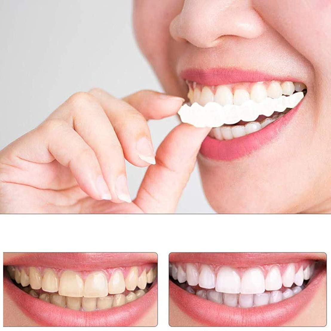 ストレス散髪日記2個パーフェクトニートコンフォートフィットするFlex歯ベニア口ケアホワイトが美しい笑顔