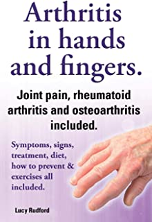 Arthritis in Hands and Arthritis in Fingers. Rheumatoid Arthritis and Osteoarthritis Included. Symptoms, Signs, Treatment, Diet, How to Prevent & Exer
