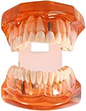 DR. WHITE Dental Teeth Model Orange,Transparent Dental Implant Disease Teeth Model Dentist Standard Pathological Removable Tooth Teaching Tools for Student