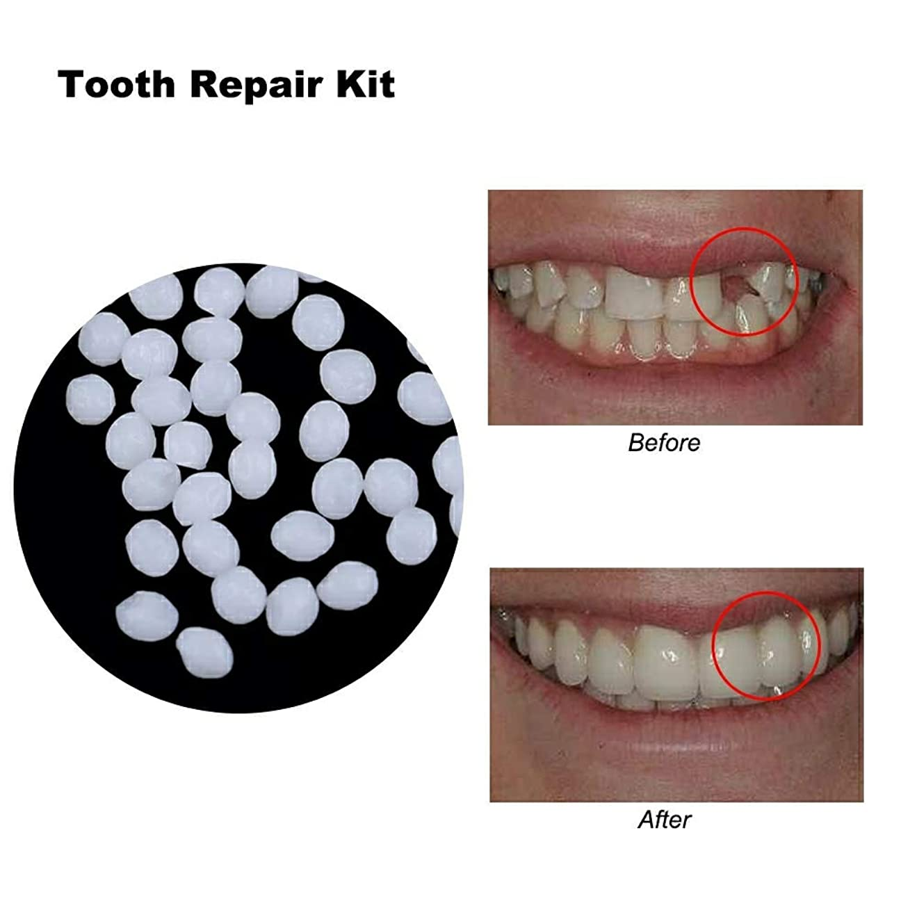 腕シェトランド諸島九月義歯の固体接着剤の一時的な歯の修理キットの歯の欠けている歯の交換用接着剤、5個,White,10g
