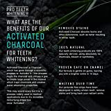 28 Bleaching-Strips mit Aktivkohle  von Pro Teeth Whitening Co