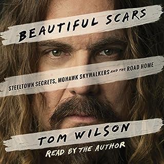 Beautiful Scars cover art