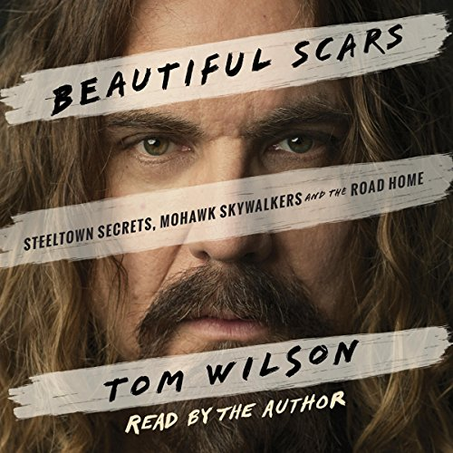 Beautiful Scars Audiobook Tom Wilson Audible Ca