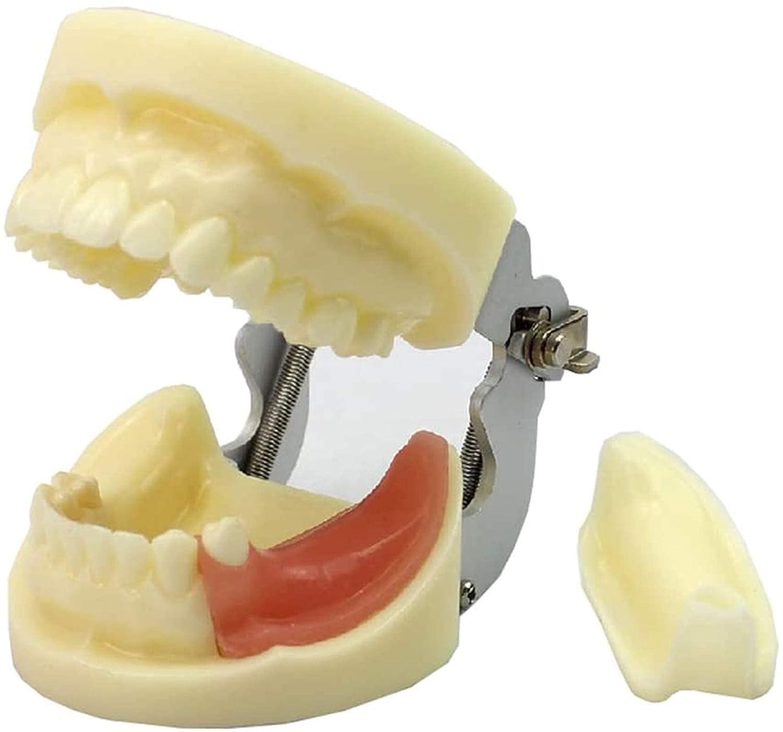 ZLF Implant Teeth Popular Model Adult Dental Philadelphia Mall Replaceable -