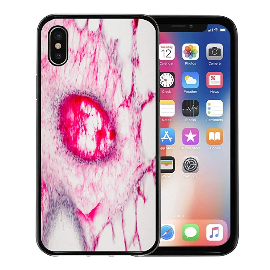 Semtomn Phone Case for Apple iPhone Xs case,Human Lung Tissue Under Microscope View Are the Primary Organs of Respiratory System in and Many Other for iPhone X Case,Rubber Border Protective Case,Black