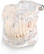 Tandheelkundig model, tandheelkundig implantaat tandmodel, tandheelkundig demonstratietandenmodel, geschikt voor tandartsp...