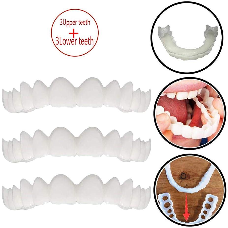 祝福行動ロードされた3ペアの一時的な歯のホワイトニング、シミュレーションブレース上部ブレース+下部ブレースホワイトニングティースナップオンインスタント完全ベニア,3upperteeth+3lowerteeth