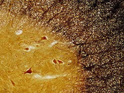 50 Bresser Dauerpräparate für Mikroskope in edler Holzbox Erfahrungen & Preisvergleich