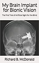 My Brain Implant for Bionic Vision: The First Trial of Artificial Sight for the Blind