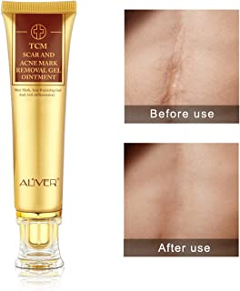 TCM Scar and Acne Mark Removal Gel Cream Ointment, Anti-inflammatory and Rapairing,Acne Scar Removal Cream Skin Repair Face Cream Acne Spots Acne Treatment Blackhead Whitening Cream Stretch Marks 30ml