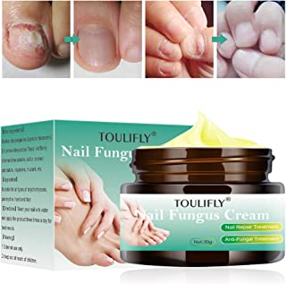 fingernail fungus treatment by TOULIFLY