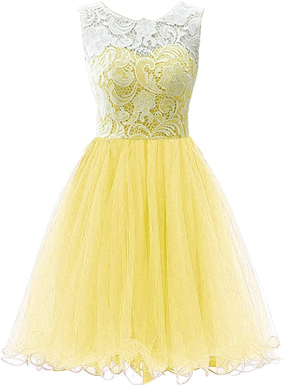 Anlin Women's Short Tulle Prom Dress Bridesmaid Homecoming Gown with Lace ALS10
