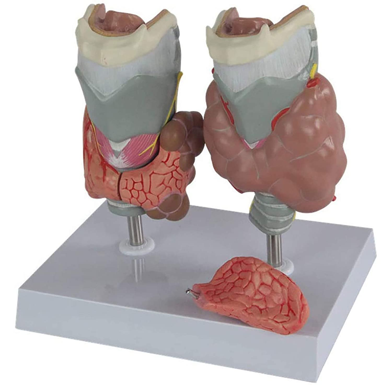 ZLF Human Anatomy Model Disea Mesa Mall Thyroid Excellence Endocrine Pathology